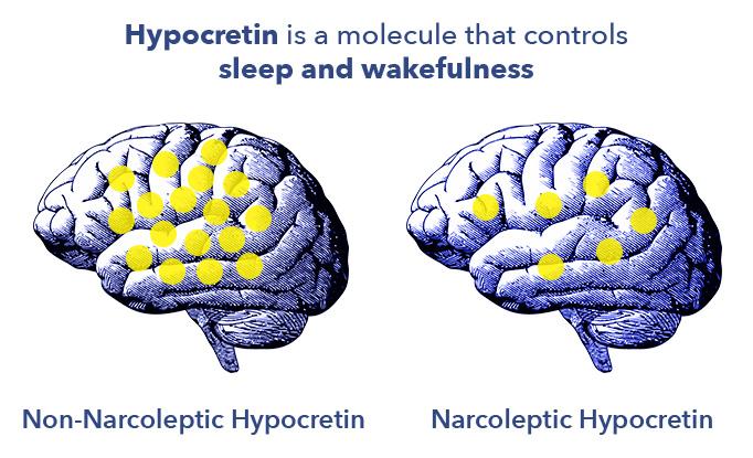 Hypocretin and the Brain