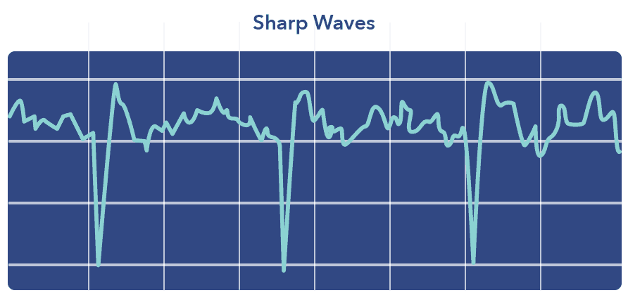 Sharp waves graphic, N3 sleep article
