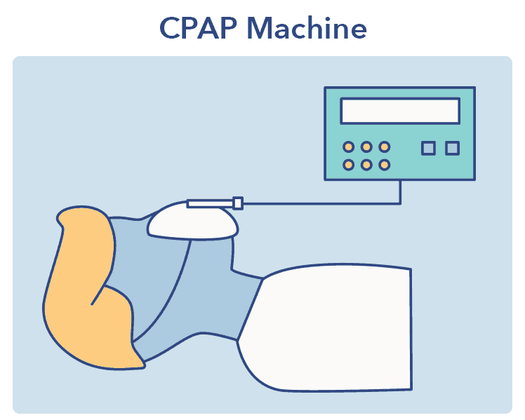 CPAP graphic, Sleep Apnea article