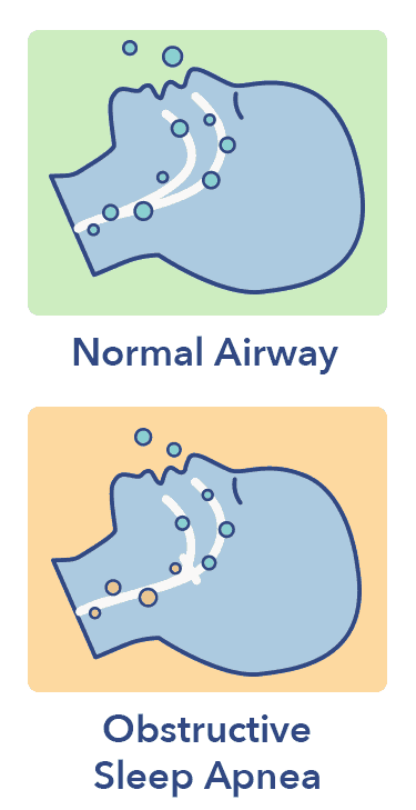 Obstructed airway graphic