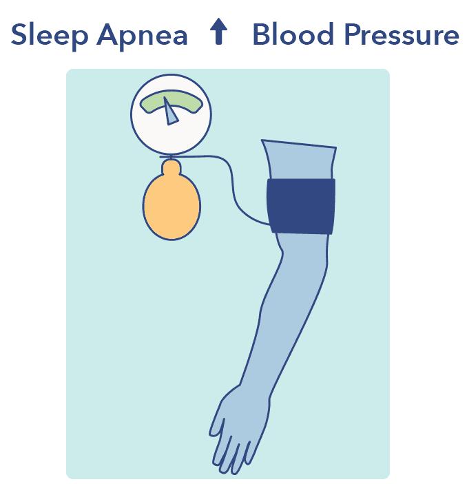 Sleep Apnea blood pressure graphic