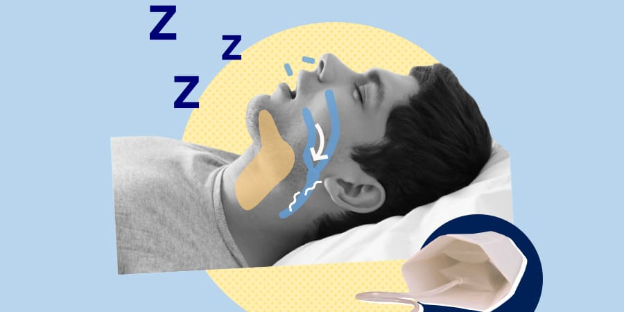 Smart Nora Anti-Snore Review